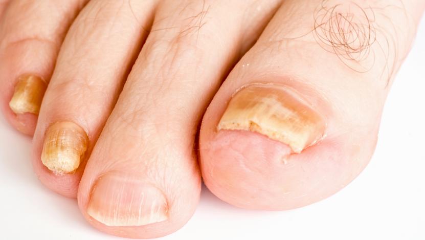 Les raisons du développement du microorganisme végétal du pied